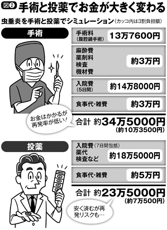 手術と投薬でお金が大きく変わる(虫垂炎を手術と投薬でシミュレーション)
