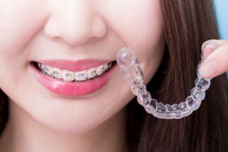 歯列矯正で後悔しないためにはどうすべき?(イメージ)